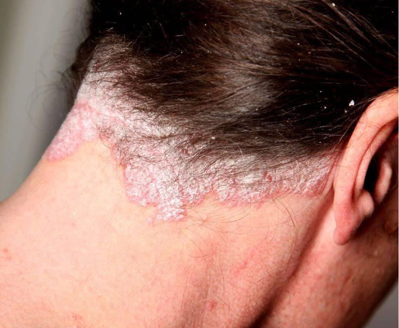 Себорея кожи головы: причины и средства лечения