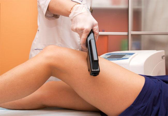 Услуги лазерной косметологии в Одессе - Лазерная эпиляция
