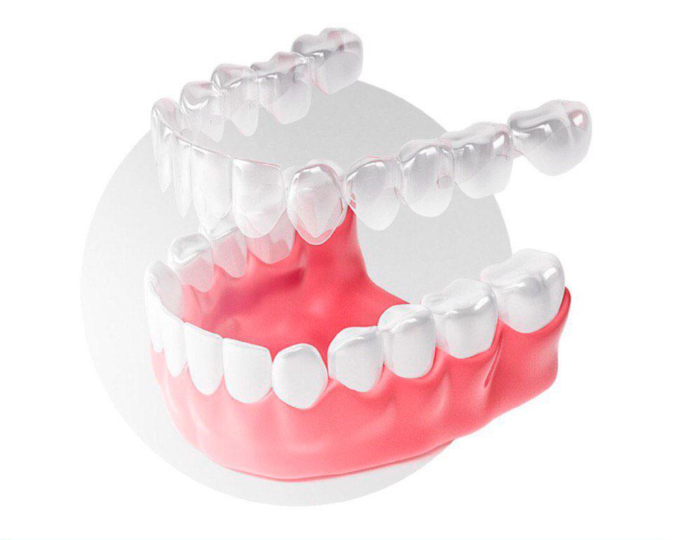 Дефекты прикуса и аномалии развития зубного ряда. Элайнеры