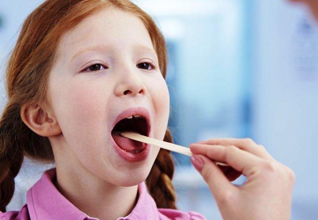 Заболевания уха, горла, носа. Как вылечить ангину?