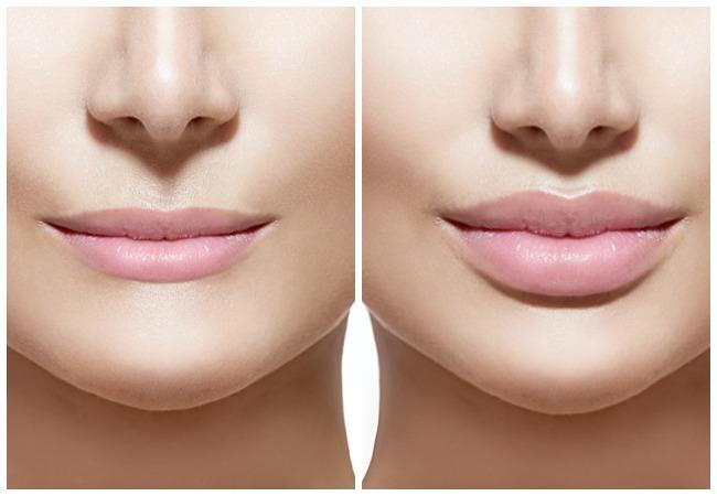 Контурная пластика вашего лица