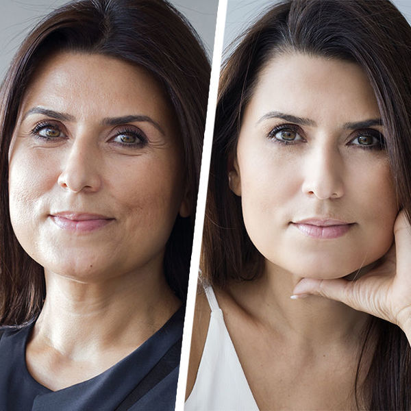 Следим за кожей лица и тела. Мезотерапия и прочие косметологические процедуры