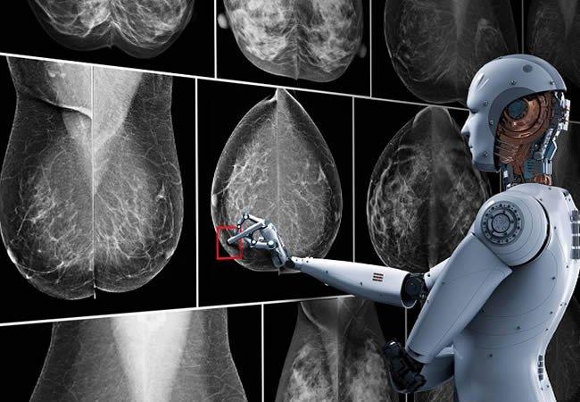 Цельс. Маммография