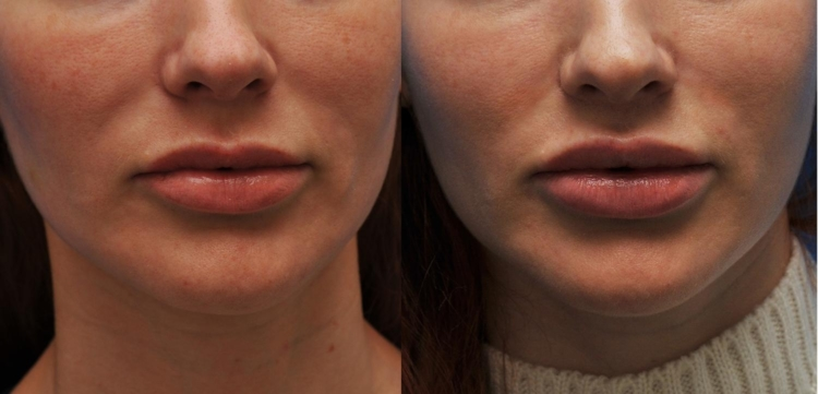Пластическая Хирургия. Подтяжка лица и губы